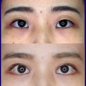 上眼瞼形成術(短冊状挙筋腱膜弁法)、挙筋前転術+目頭切開+下眼瞼下制手術術後2ヶ月