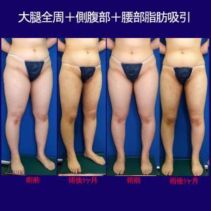 大腿全周+側腹部+腰部脂肪吸引(術後1ヶ月)