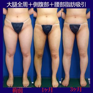 大腿全周+側腹部+腰部脂肪吸引(術後3ヶ月)