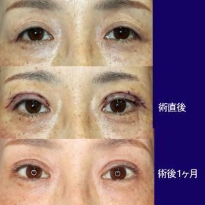 上眼瞼形成術(短冊状挙筋腱膜弁法)、眼瞼下垂症手術+眼窩脂肪除去。術後1ヶ月