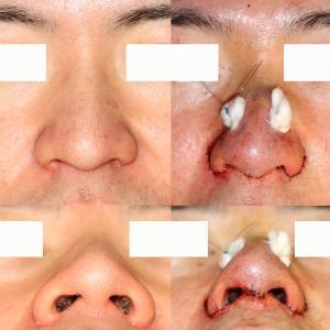鼻尖形成+鼻翼縮小