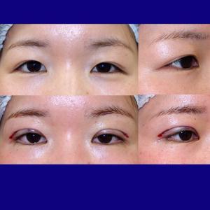 上眼瞼形成術(挙筋前転術:短冊状挙筋腱膜弁法、ROOF切除+眼窩脂肪除去)