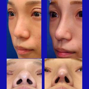 鼻中隔延長術+隆鼻プロテーゼ、経過