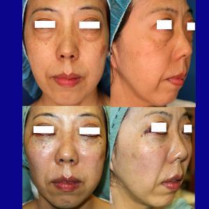 下眼瞼除皺術(頬骨~上顎骨骨膜下リフト+脂肪注入)