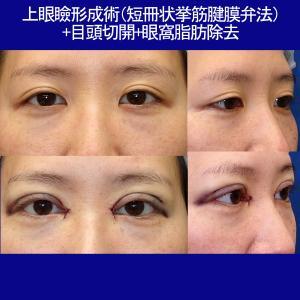 上眼瞼形成術(挙筋前転術:短冊状挙筋腱膜弁法)眼窩脂肪除去+目頭切開