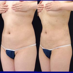 腹部、腰背部、上腕脂肪吸引(術後1ヶ月)