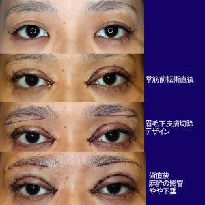 上眼瞼形成術(短冊状挙筋腱膜弁法:挙筋腱膜前転)+眼窩脂肪除去+目頭切開+眉毛下皮膚切除