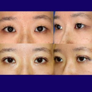 上眼瞼形成術(短冊状挙筋腱膜弁法:挙筋腱膜前転)+眼窩脂肪除去
