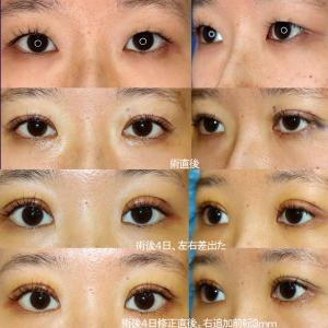 上眼瞼形成術(短冊状挙筋腱膜弁法:挙筋腱膜前転)+眼窩脂肪除去、修正