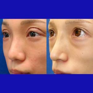 鼻中隔延長術(肋軟骨移植)+隆鼻プロテーゼ、術後6ヶ月