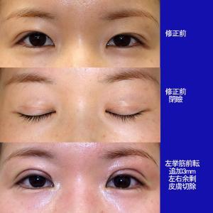 上眼瞼形成術(挙筋前転術:短冊状挙筋腱膜弁法)眼窩脂肪除去、修正