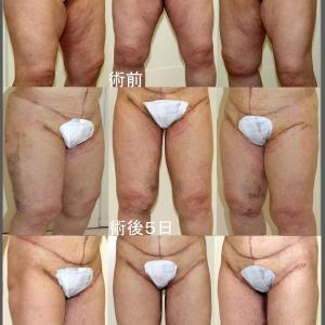 Reduction Thigh Plasty