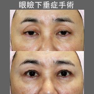 眼瞼下垂症手術(術後1ヶ月)