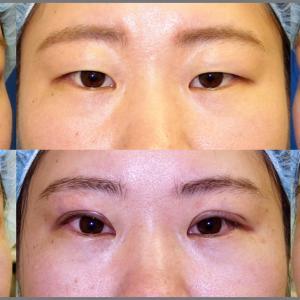 上眼瞼形成術(全切開式二重)