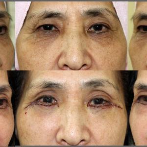 下眼瞼除皺術+脂肪移植