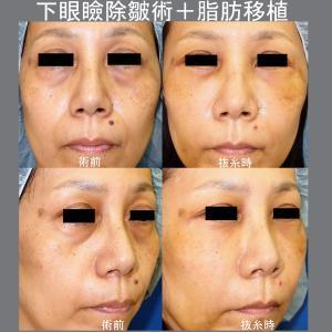 下眼瞼除皺術+脂肪移植術(抜糸時)