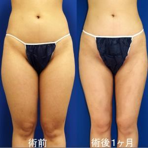 腰部、大腿全周脂肪吸引(術後1ヶ月)