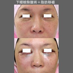 下眼瞼除皺術+頬骨部脂肪移植