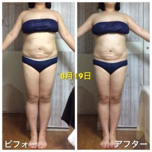 【大人気!】夏目式筋膜ドレナージュ+キャビテーションお試しのビフォーアフター☆