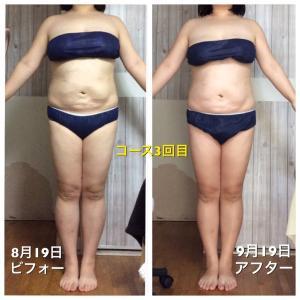 筋膜ダイエット×キャビテーションコース 3回目~5回目☆一気に!