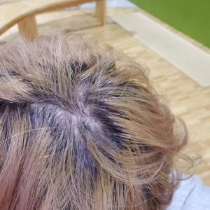 脱毛の始まり…頭皮の全毛穴が激痛です(*_*;