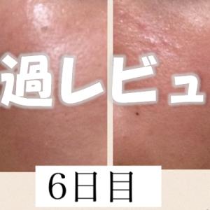 そばかすを消す化粧品レビュー『ハイドロキノン×トレチノイン4日目~6日目、経過』