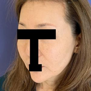 【症例写真】フェイスラインすっきり!秘密の美肌小顔リフトで若見せ効果抜群!