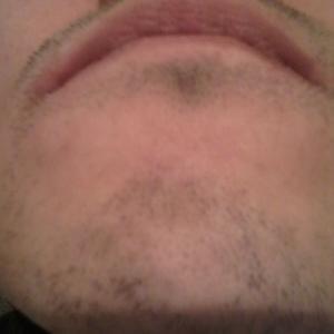 髭レーザー脱毛 照射2回目後、1週間〜3週間