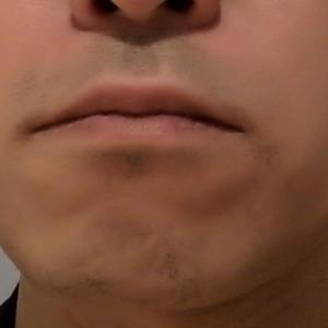 髭レーザー脱毛 照射6回目後、1ヶ月半