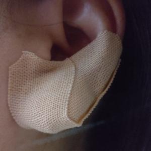 無事に粉瘤摘出が終了しました。今日も病院行って経過観察です。抜糸はまだよ。