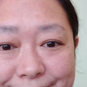 日本で緊急入院!網膜剥離と髄膜炎(原田病)