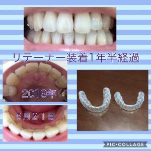 矯正歯科開始から3年2ヶ月経過