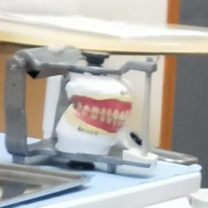 まさか!まさかの入れ歯づくりは長丁場!完成したのは本当の仮歯だった(;_;)~母親の認知症~