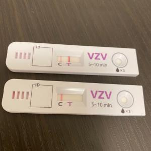 帯状疱疹の検査