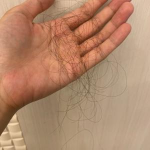 薄毛の内服薬