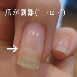 ジェルネイルアレルギーの影響??爪甲剥離症