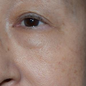 プラセンタエキス原液 使用後 2週間目 口コミ 瞼が・・