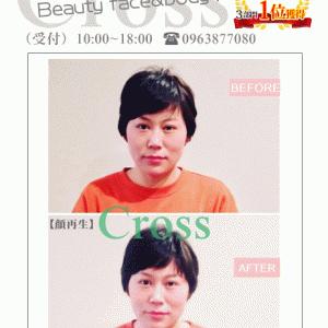 頭蓋骨を20代に戻す【顔再生】【熊本市東区美容骨格矯正のクロス】