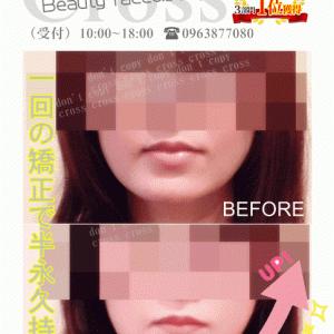 フェイスラインのビフォーアフター【熊本市東区美容骨格矯正のクロス】