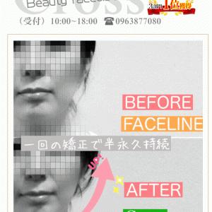 美容整形以上のフェイスラインの仕上がり✨【熊本市東区小顔矯正】