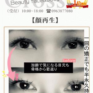 目元・頭蓋骨のアンチエイジング矯正【熊本市東区小顔矯正】