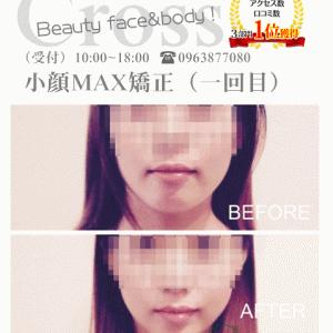 小顔MAXのクチコミありがとうございます(*^▽^*)【熊本市東区小顔矯正クロス】
