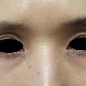 くぼみ目のヒアルロン酸注入