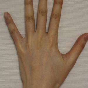 手背のヒアルロン酸注入