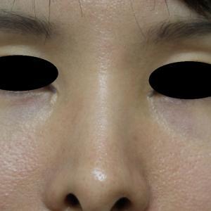 鼻孔縁を下げるヒアルロン酸注入