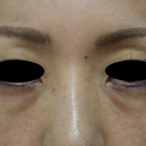 経結膜脱脂と涙袋へのヒアルロン酸注入のコンビネーション治療