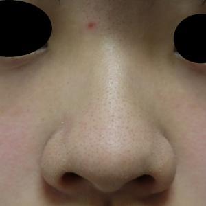 小鼻縮小術+鼻尖縮小術の1ヶ月後経過