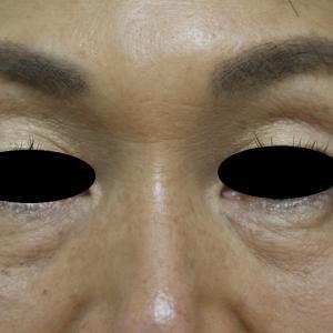 目の下のくぼみに対するヒアルロン酸(リデンシティー2)注入