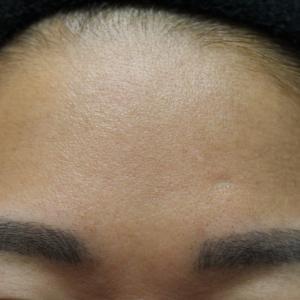 額へのヒアルロン酸注入