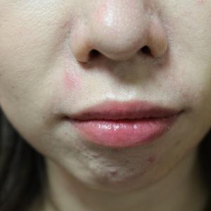 顎へのヒアルロン酸注入